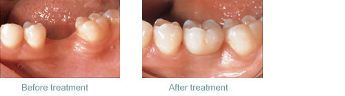 Dental implants used to replace missing back teeth