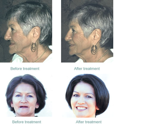 Before and after treatment individuals that had lost all of their teeth, teeth replaced with implant supported dentures.