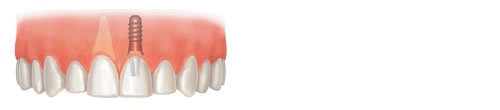 Illustration showing how a single missing tooth is replaced by a dental implant