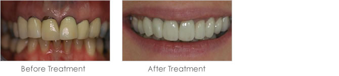 Before and after treatment with dental crowns
